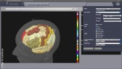 Bild: Virtual Brain Software; Copyright: The Virtual Brain